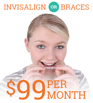 $99 a month braces or Invisalign coupon